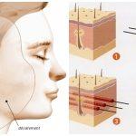 Nâng mũi bằng chỉ sinh học hiện nay có mấy loại?