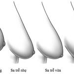 Phẫu thuật nâng ngực chảy xệ có tốt không?