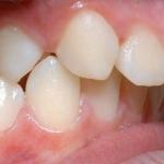 Chỉnh răng hô móm bằng cách nào hiệu quả?