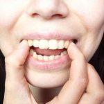 Phẫu thuật hô vẩu hàm, bạn cần biết